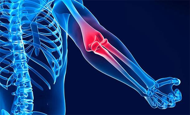 Что делать если болит локтевой сустав