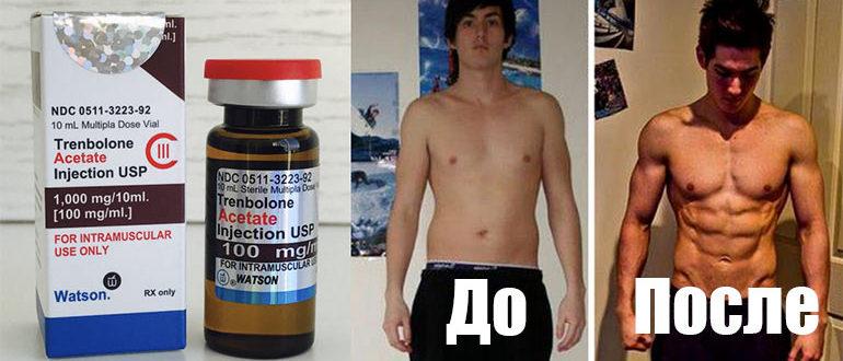 Стероидный препарат - Тренболон ацетат